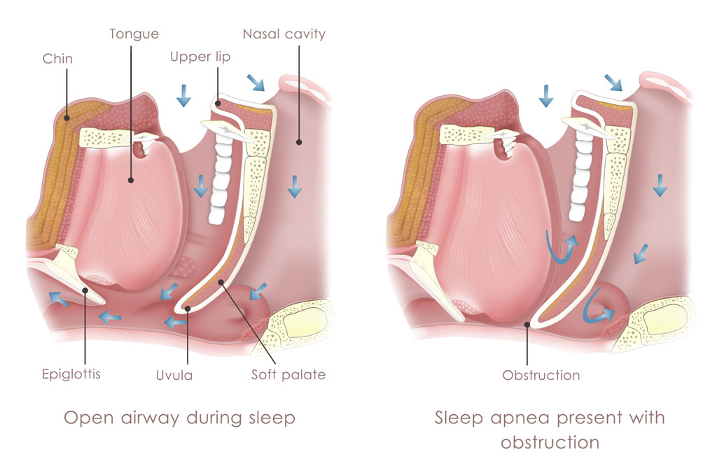 Obstructive Sleep Apnea Symptoms Diagram