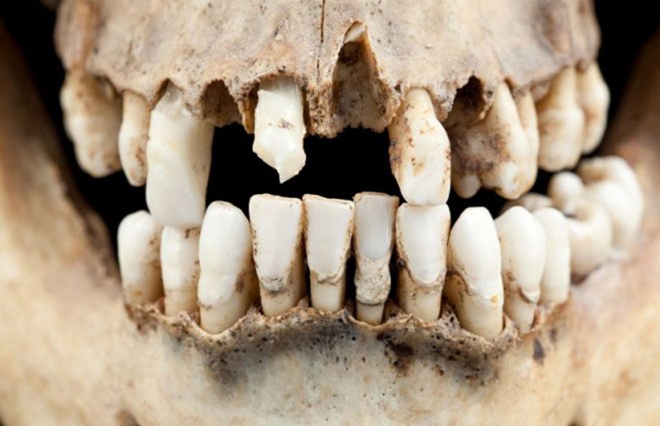 Our-Ancestors-Had-Better-Teeth-Than-Us.-Where-Did-We-Go-Wrong